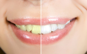 Teeth Whitening and Bleaching in Silver Spring & Hyattsville, MD