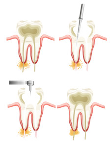 Illustration showing a root canal procedure