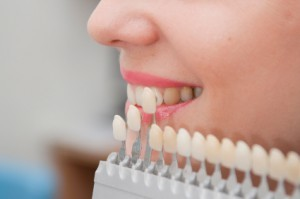 Dental Veneers in Silver Spring & Hyattsville, MD