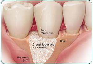 bone-grafting2