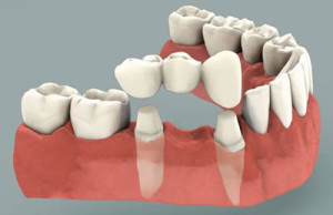Dental Bridges in Silver Spring & Hyattsville, MD