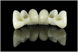 dental_bridge1