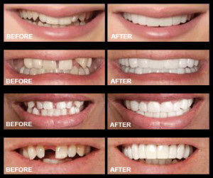 Snap On Smile in Hyattsville & Silver Spring, MD
