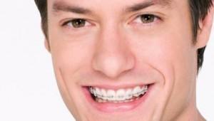 braces3