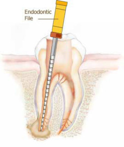 endodontics in silver spring maryland