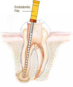 endodontics in silver spring maryland