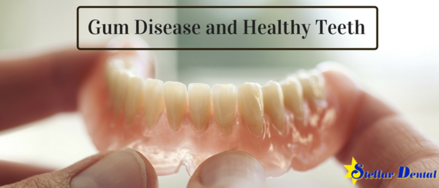 Gum Disease and Healthy Teeth