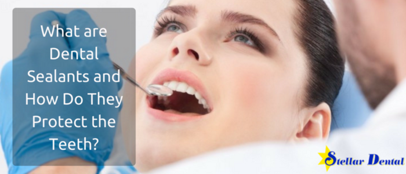 What are Dental Sealants and How Do They Protect the Teeth?