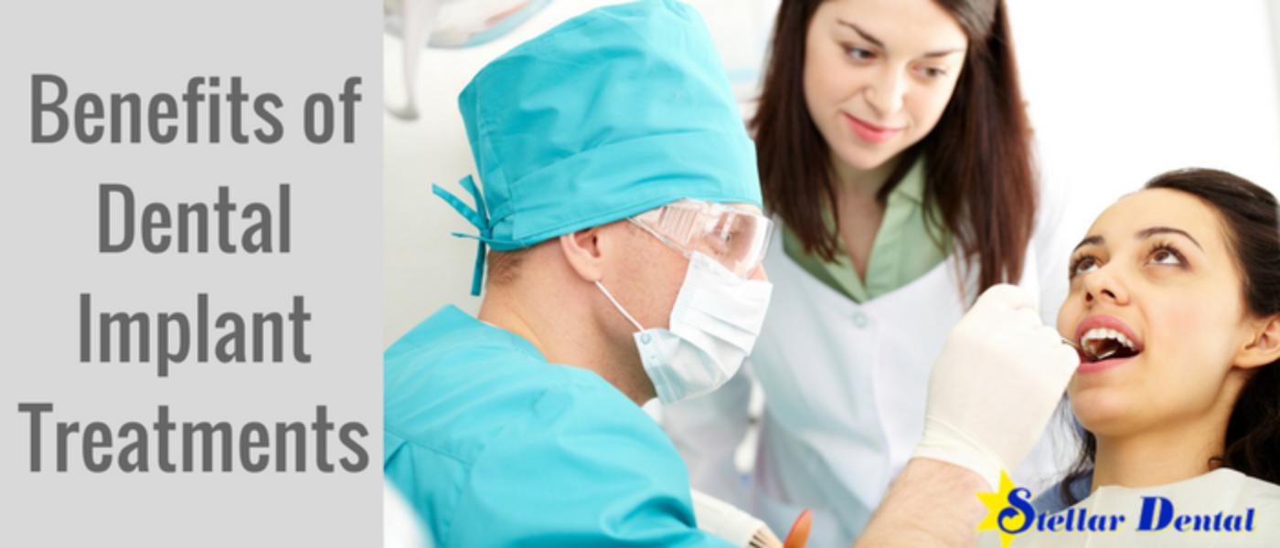 Benefits of Dental Implant Treatments