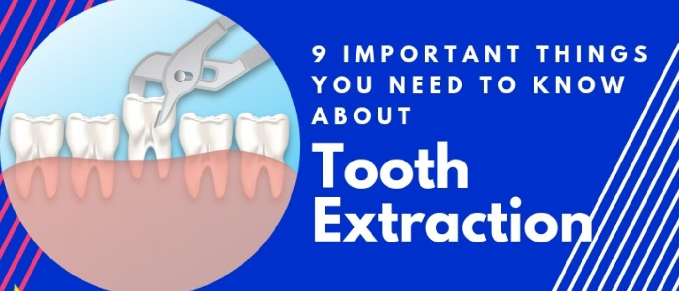 9 Important Things You Need to Know About Tooth Extraction