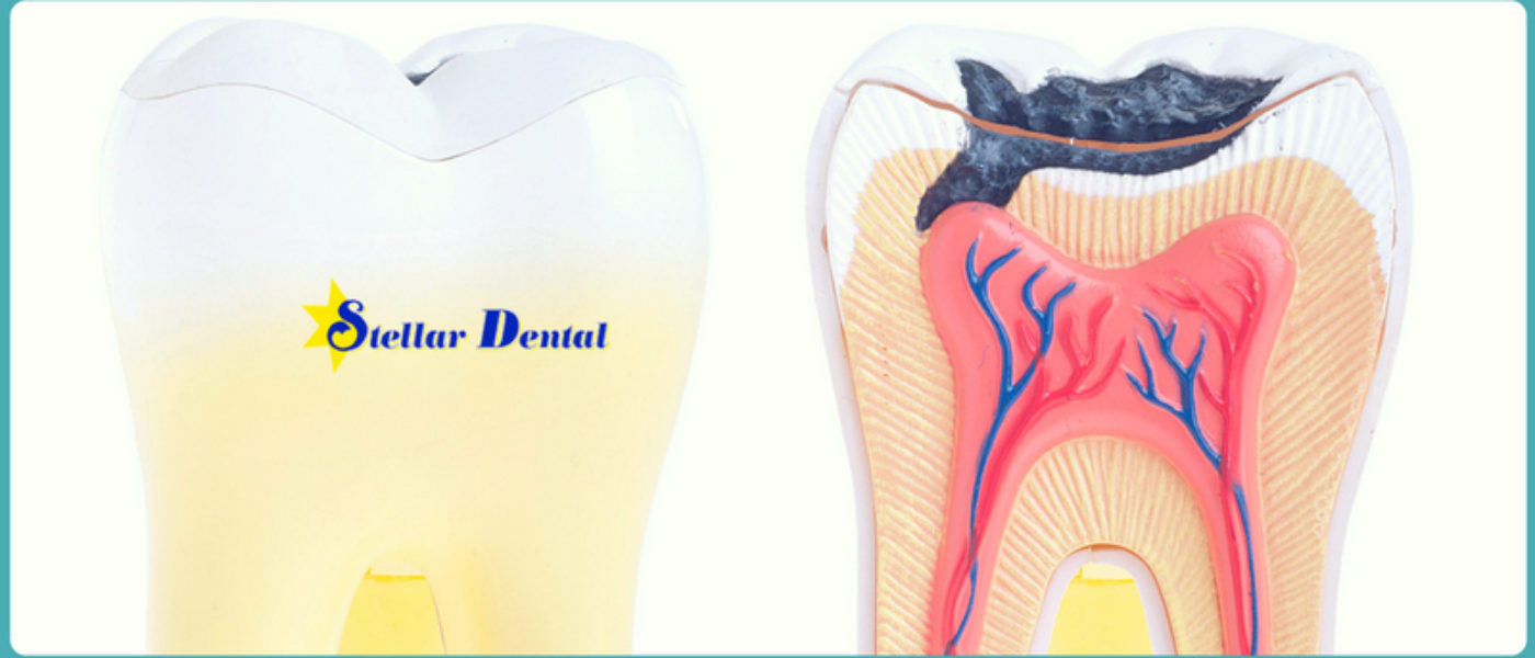 How to Know If You Have a Cavity: Look for Symptoms of Tooth Decay