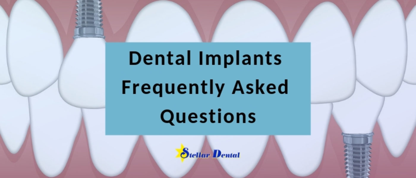 Dental Implants: Get the Answers to Frequently Asked Questions