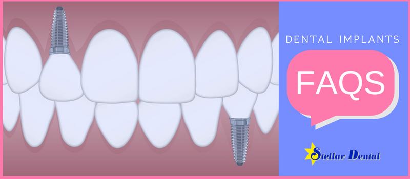 dental implants faqs