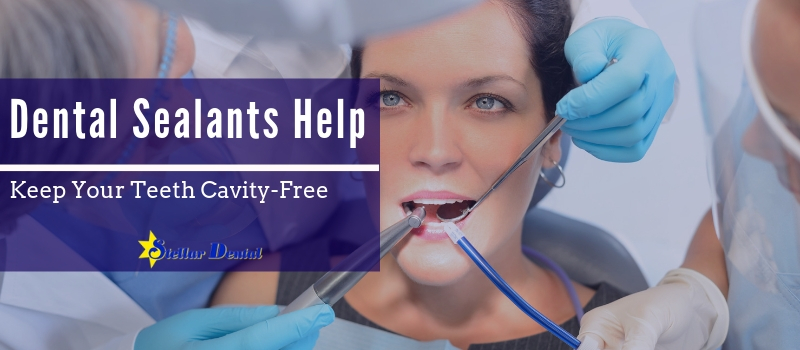 dental sealants keep your teeth cavity free
