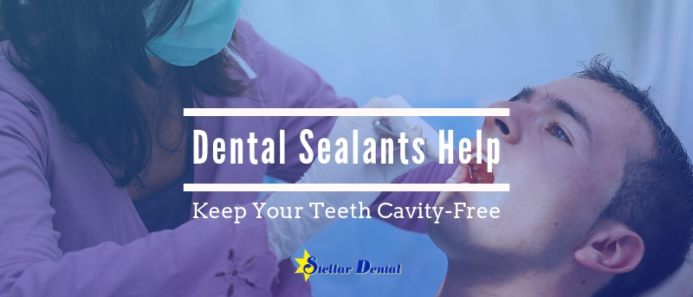 How Dental Sealants Help Keep Your Teeth Cavity-Free