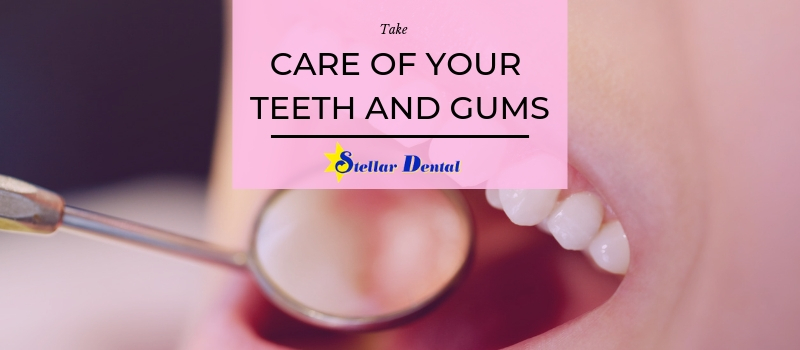 care-your-teeth-and-gums