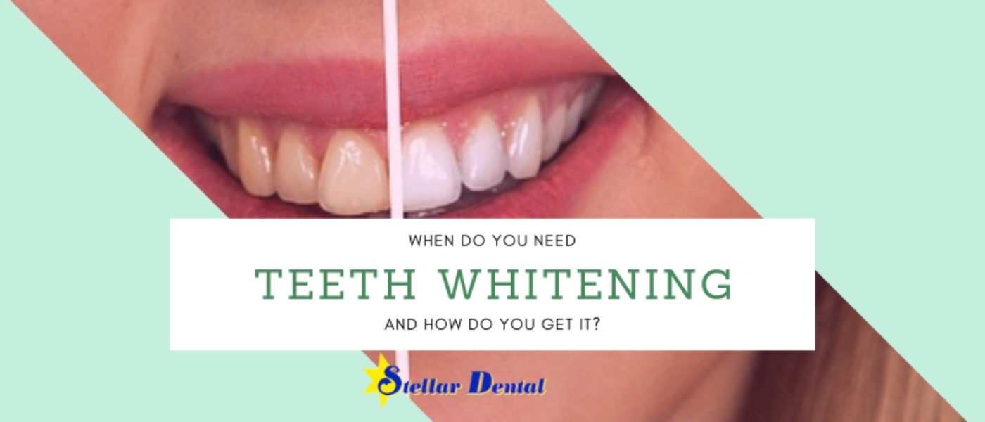 When Do You Need Teeth Whitening and How Do You Get It?